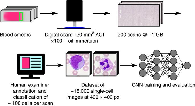 Convolutional Neural Network Leukaemia